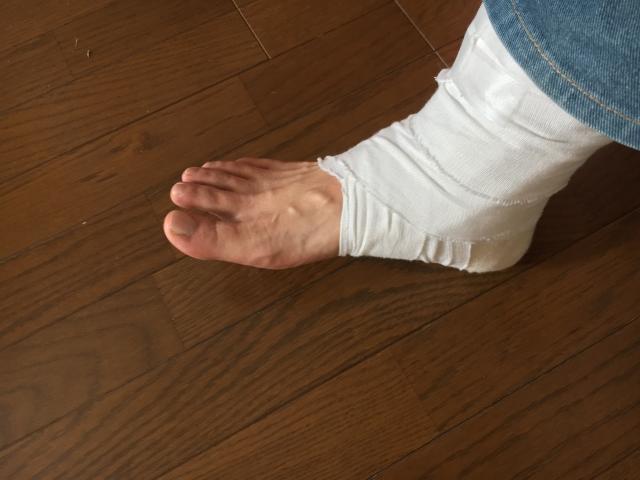 脚を怪我している人