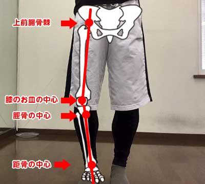 O脚の脚の状態