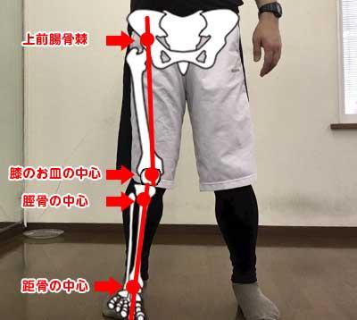 X脚の脚の状態