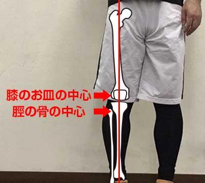 膝のねじれのチェックポイント